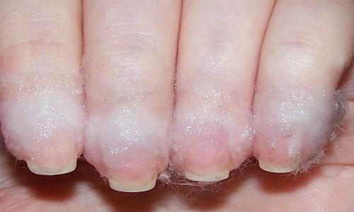 Cinco passos para manter as unhas bonitas por mais tempo - remover a cuticula