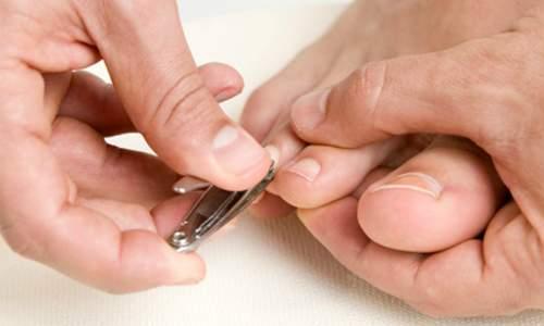 Unhas encravadas - Como tratar e evitar - cortanto as unhas