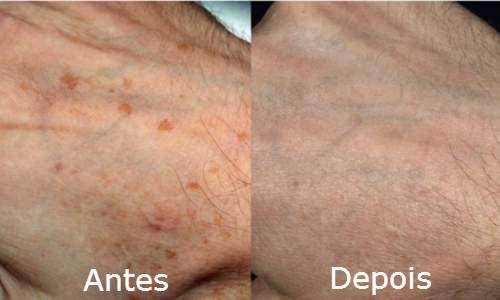 5 Dicas para combater o envelhecimento das mãos machas