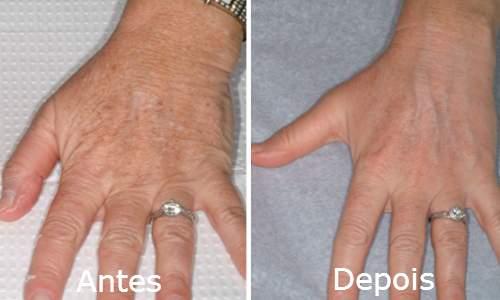 5 Dicas para combater o envelhecimento das mãos rejuvenecimento mãos