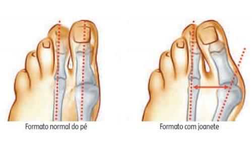 Joanete - Causas, sintomas, diagnóstico e  tratamento - imagem